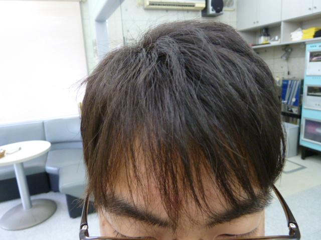 フロントとサイド前の方の縮毛矯正